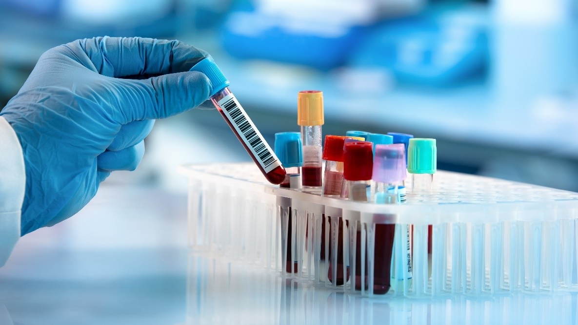 Slika prikazuje specialista, ki izvaja test za celiakijo